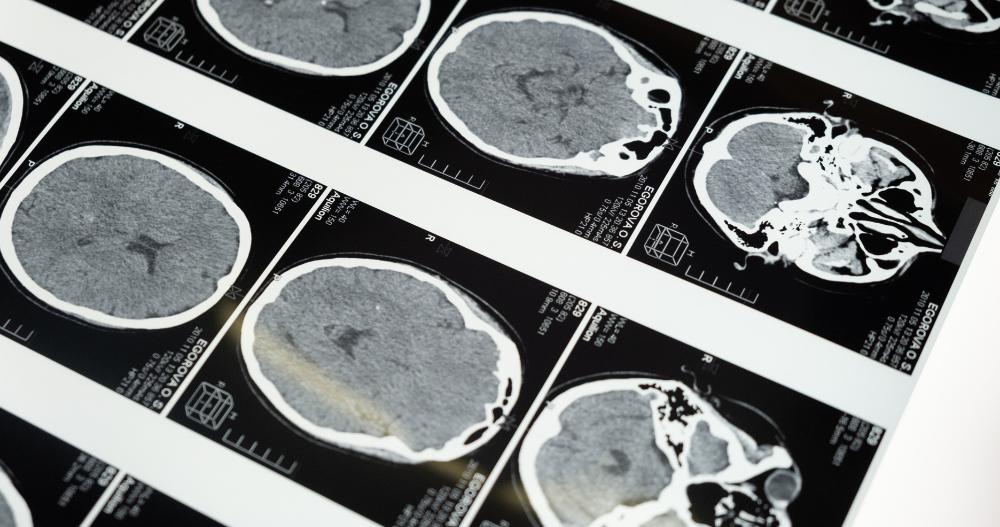 The Aftermath of War: Traumatic Brain Injury